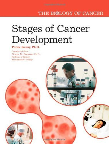Stages of Cancer Development (Biology of Cancer) (English Edition)